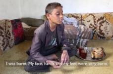 A Yemeni boy who was badly burnt in an airstrike in Yemen