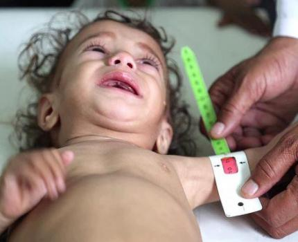 YEMEN: A further one million children at risk of famine as food and fuel prices soar across the country