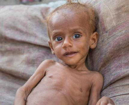 85,000 CHILDREN MAY HAVE DIED FROM STARVATION SINCE START OF WAR