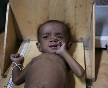 Alarming cholera spike in Yemen coastal region